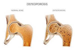 Novaendocenter.com osteoporosis diagram