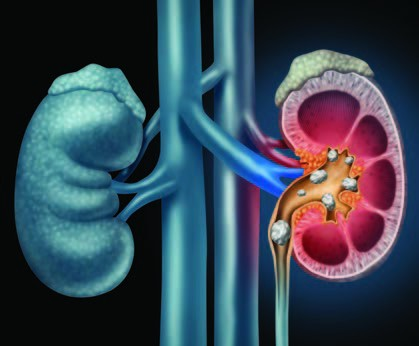 Kidney Stones: Treatment & Prevention