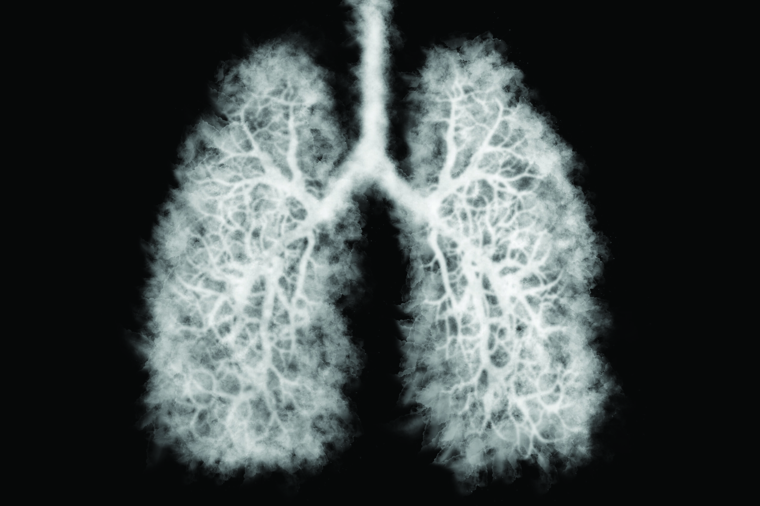 New Lung Cancer Screening Recommendations